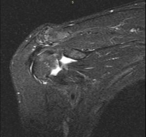 Segni radiografici di ispessimento anormale dei tessuti molli nell'intervallo del rotatori.