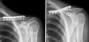 Stabilizzazione frattura con placca.